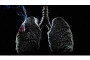这些东西对肺的伤害,是不可逆的哦!