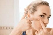 """油性皮肤怎么护理才能摆脱""""油腻""""呢"""