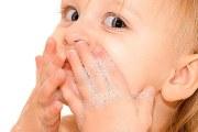 怎样避免宝宝皮肤过敏