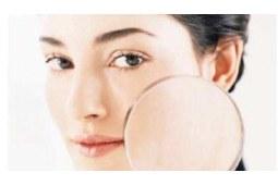 什么是敏感性皮肤,敏感性皮肤护理应该注意哪些问题?