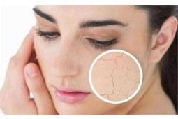 你知道,敏感肤质用什么护肤品比较好吗?