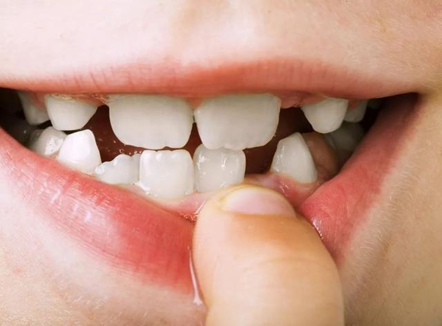乳牙,恒牙